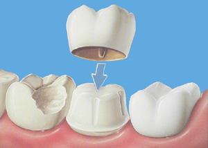 Dentist Rancho Cucamonga